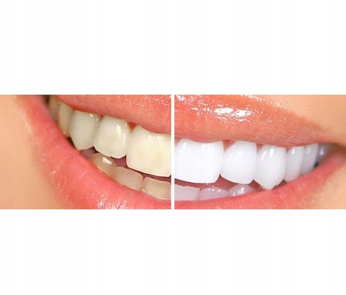 Bright White для домашнего отбеливания зубов в Саратове