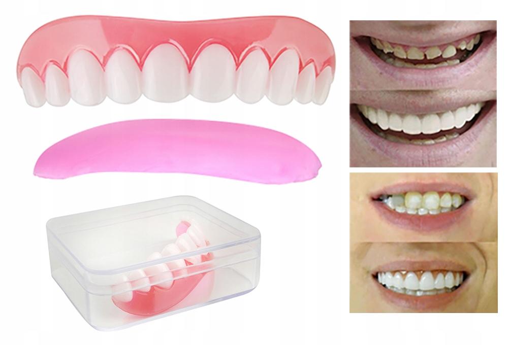 Наложение на Десны Красивая Улыбка Искусственные Зубы