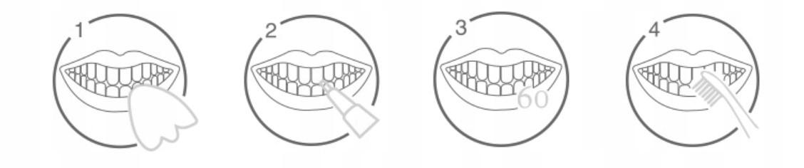 Skuteczne żele wybielające strzykawki 3x Marka IVISMILE