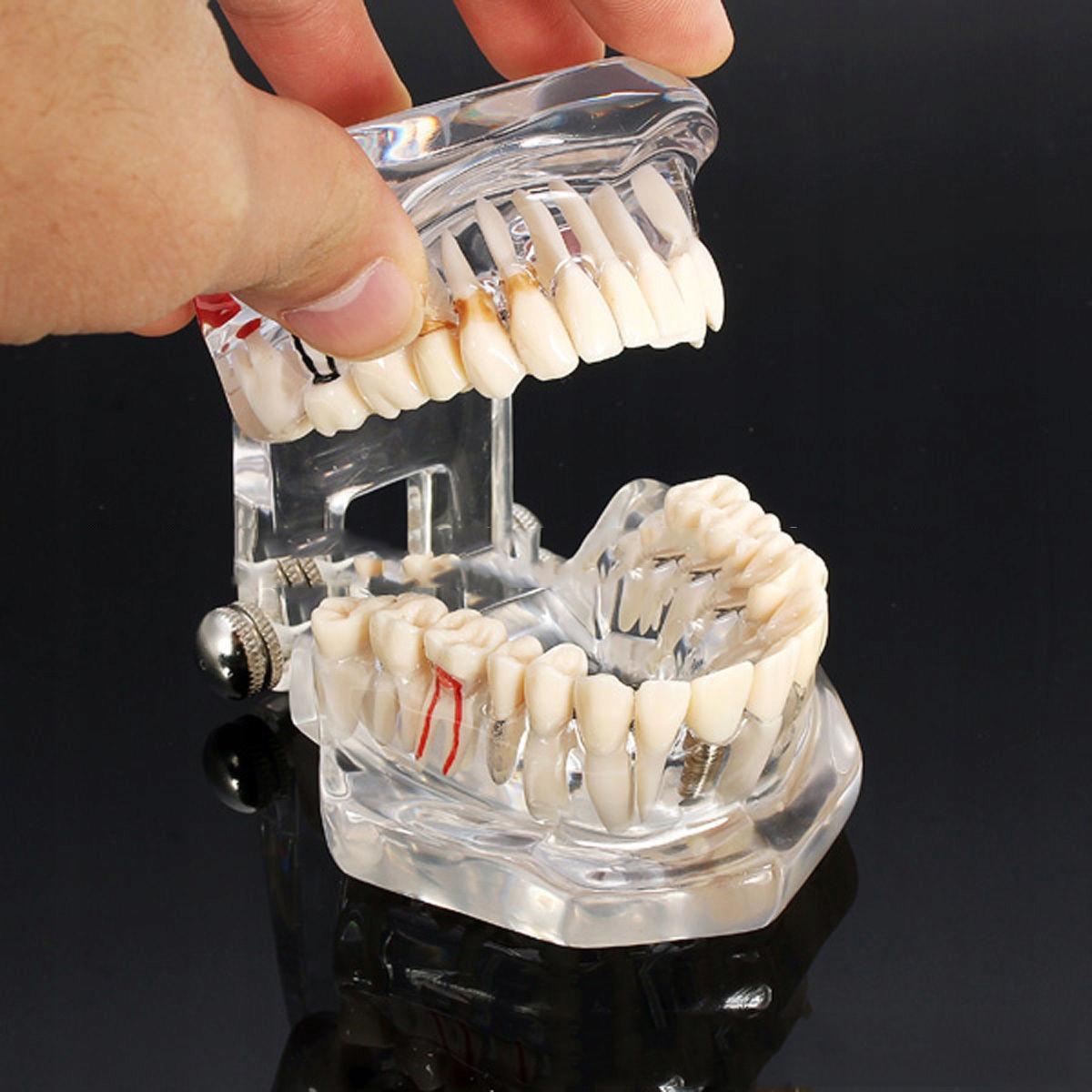 Патологическая модель взрослых зубов