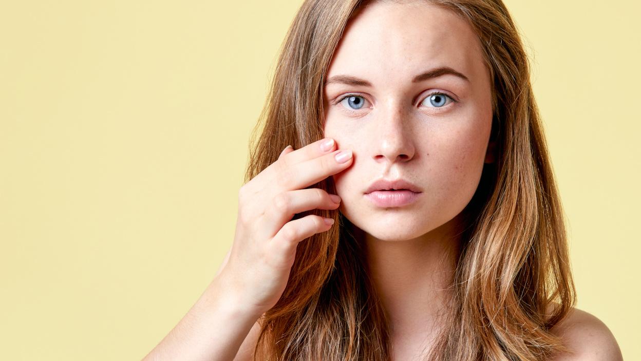 TOP 10 niedrogich kosmetyków na trądzik, które naprawdę działają