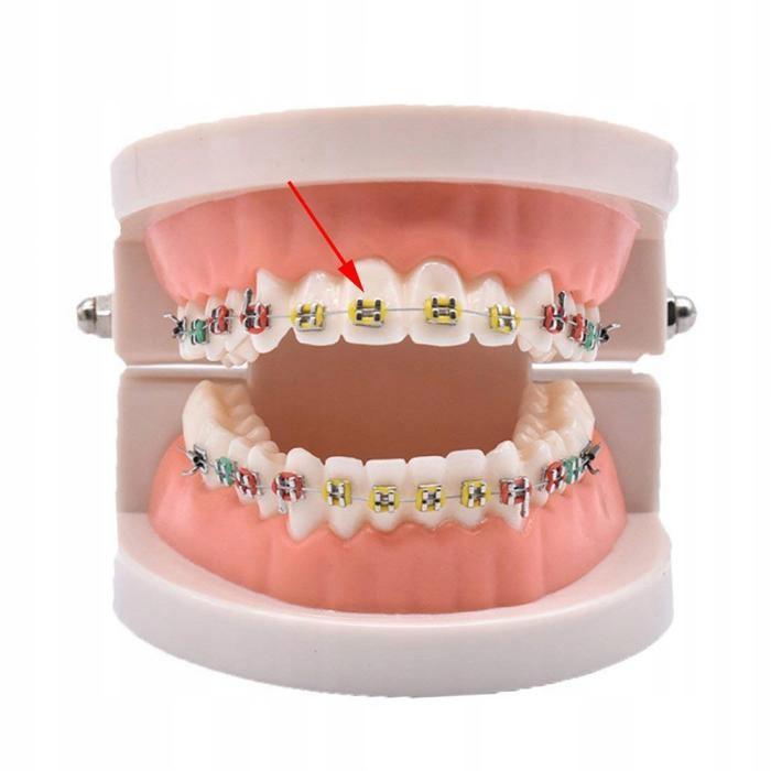 10x Gumki Na Aparat Ortodontyczny Ligaturki Kolor 8592665033 Oficjalne Archiwum Allegro