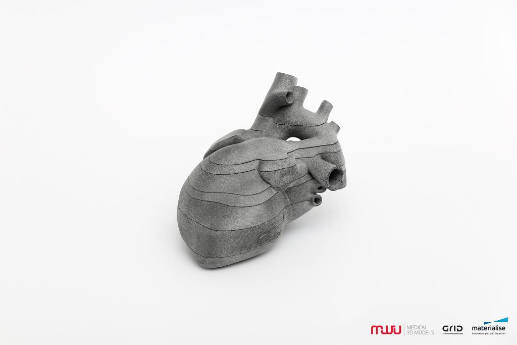 Model 3D serca płodu - specjalna edycja limitowana