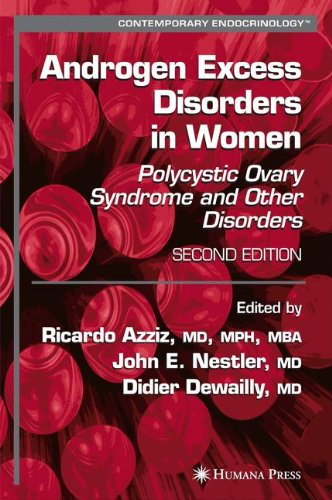 Androgen Excess Disorders in Women: Polycystic Ova
