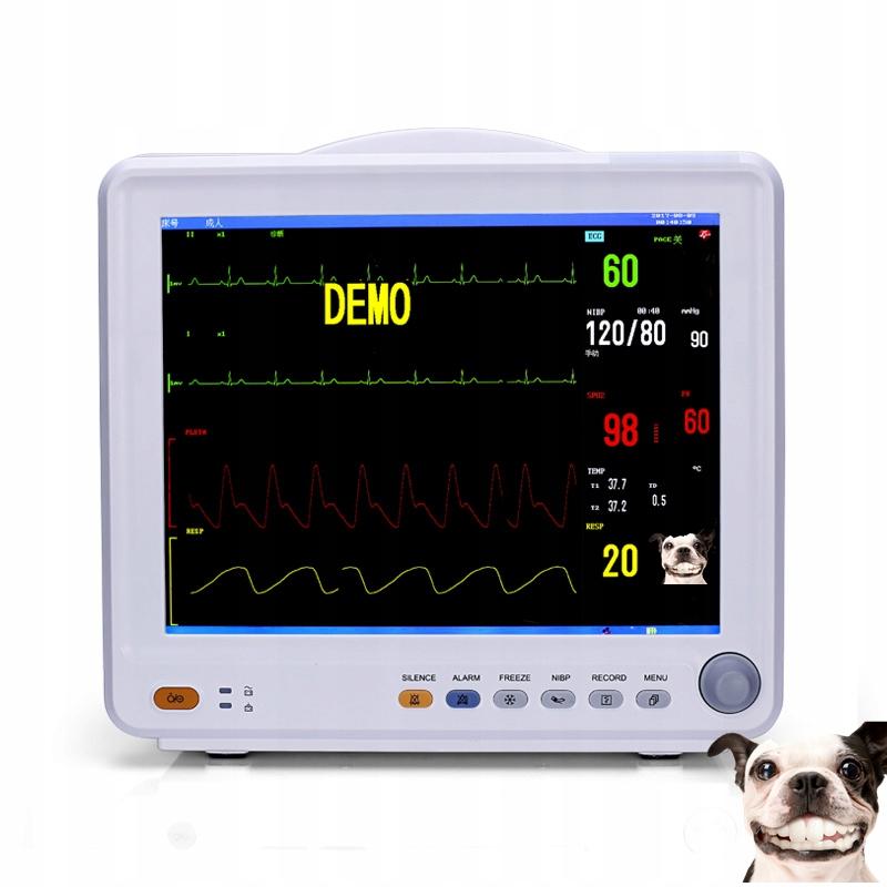 Monitor pacjenta EKG
