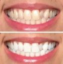 AP-24 Wybielająca pasta do zębów z fluorem NU Skin Nazwa Whitening Fluoride Toothpaste