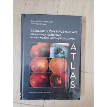Czerniak Błony Naczyniowej  ATLAS  Bożena Romanows