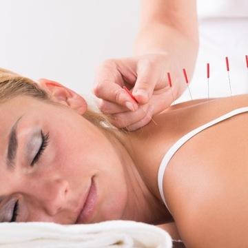 Bon Podarunkowy |Zabieg w Gabinecie Akupunktury