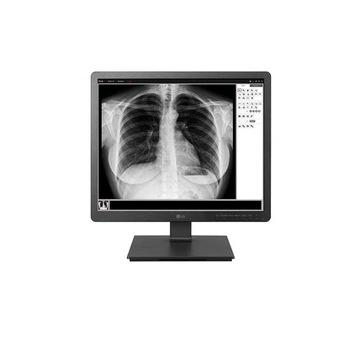 LG 19HK312C Monitor Medyczny Stomatologiczny