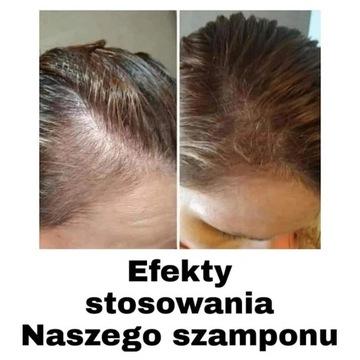 Szampon AgeLOC nu skin
