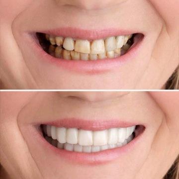 Snap On Smile zęby forniry wybielanie proteza